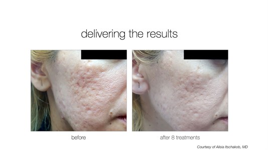 Venus Viva Skin Resurfacing Photo